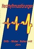 Herzrhythmusstörungen: EKG - Bilder Raten mit Jörn - Jörn Nickoleit