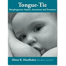 TONGUE TIE Morphogenesis, Impact, Assessment and Treatment. by Alison K. Hazelbaker (2010-08-02)