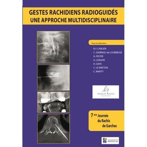 Gestes rachidiens radioguidés : une approche multidisciplinaire