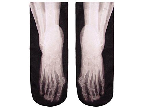 Socken Röntgenbild Fuß Strümpfe Socke Knochen -