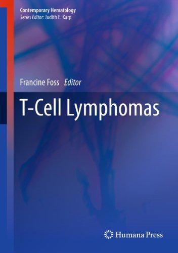 t-cell-lymphomas-contemporary-hematology