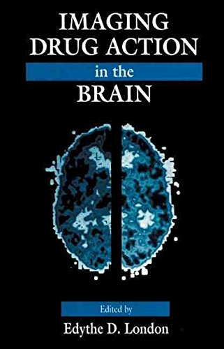 imaging-drug-action-in-the-brain-by-author-ed-london-published-on-january-1993