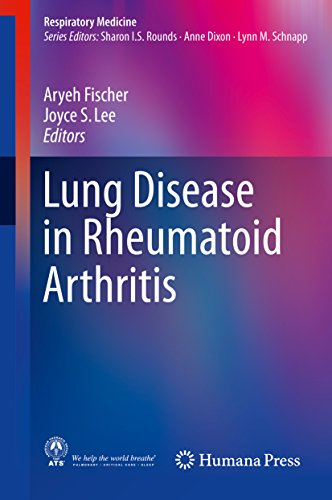 Lung Disease In Rheumatoid Arthritis (respiratory Medicine) por Aryeh Fischer