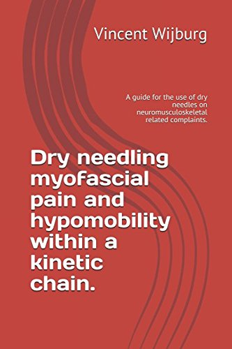 dry-needling-myofascial-pain-and-hypomobility-within-a-kinetic-chain-a-guide-for-the-use-of-dry-need