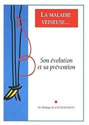 La maladie veineuse : Son évolution et sa prévention