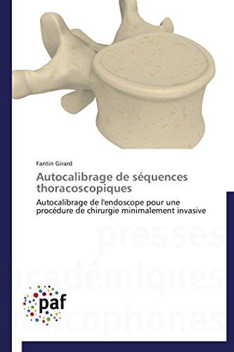 Autocalibrage de séquences thoracoscopiques par Fantin Girard
