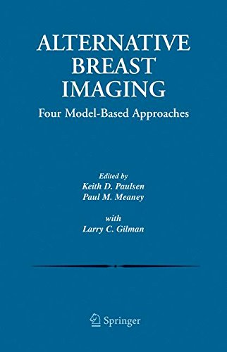Alternative Breast Imaging: Four Model-Based Approaches (The Springer International Series in Engineering and Computer Science)