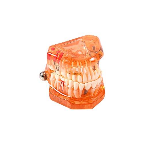 Modelo de Dientes - Dientes dentales extraíbles Modelo de implante Herramienta de demostración de Dentista para la enseñanza del Estudio de la Escuela Dental, Naranja