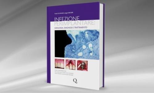 Infezione perimplantare: eziologia, diagnosi e trattamento