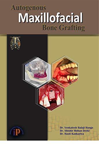 Autogenous Maxillofacial Bone Grafting