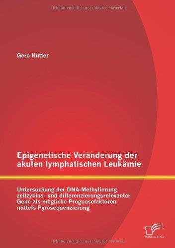 Epigenetische Veranderung Der Akuten Lymphatischen Leukamie: Untersuchung Der DNA-Methylierung Zellzyklus- Und Differenzierungsrelevanter Gene ALS Mog (German Edition) by Gero Hutter (2013-05-17)