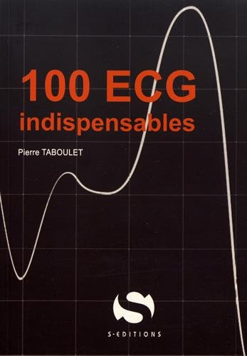 100 ECG Indispensables