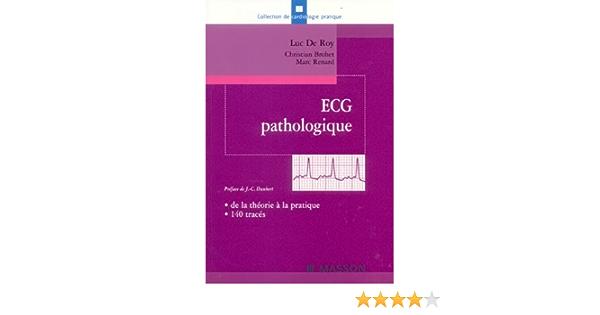 Amazon Fr Ecg Pathologique De La Theorie A La Pratique 140 Traces Roy Luc De Livres