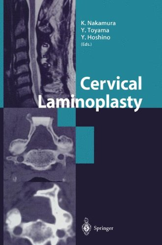 e-Books Collections Cervical Laminoplasty