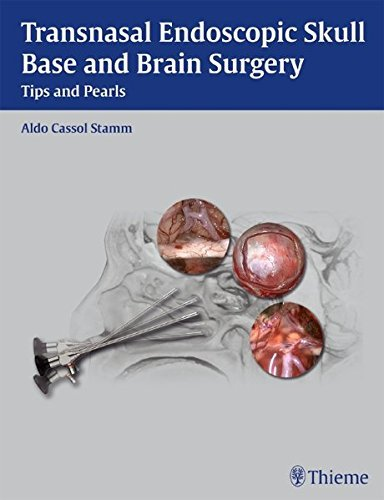 Transnasal Endoscopic Skull Base and Brain Surgery by Aldo Stamm (2011-08-24)