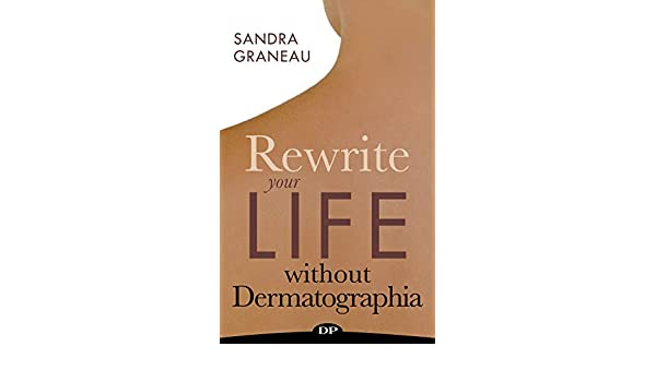 Rewrite Your Life Without Dermatographia: The All-Natural
