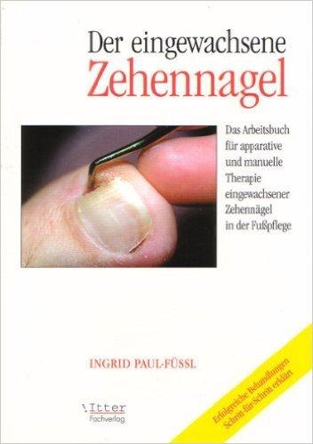 """Der eingewachsene Zehennagel """" Das Arbeitsbuch fŸr apparative und manuelle Therapie eingewachsener ZehennŠgel in der Fu§pflege"""" ( 1. Juli 1999 )"""