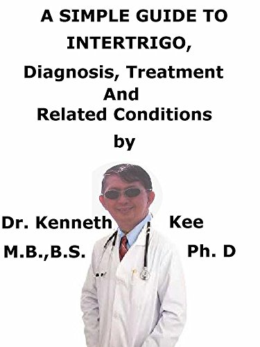 A  Simple  Guide  To  Intertrigo,  Diagnosis, Treatment  And  Related Conditions (A Simple Guide to...