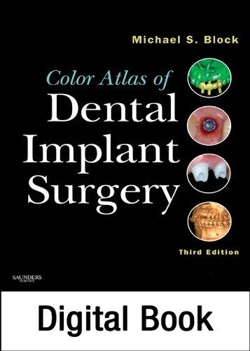 Color Atlas of Dental Implant Surgery - E-Book (English Edition ...