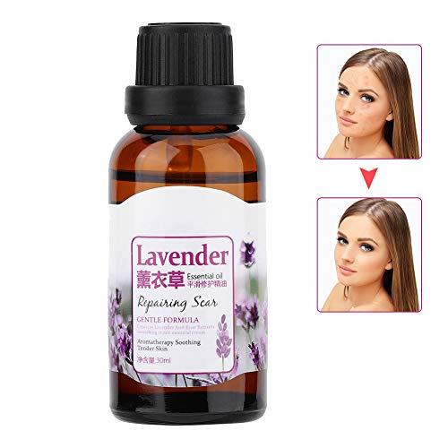 Narben-Hautreparatur-Flüssigkeit, Lavendel Essential 30ml Hautreparatur-Dehnungsstreifen machen die Haut glatt und glätten sie -