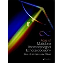 An Atlas of Multiplane Transesophageal Echocardiography