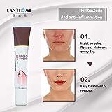 Shoppy shop Red Nose Herbal Rosacea Cream Anti Acne Nose Mites Remove Blackhead