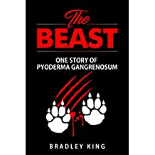 The Beast: One Story of Pyoderma Gangrenosum (English Edition)