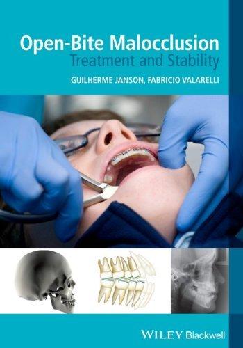 Open-Bite Malocclusion: Treatment and Stability by Guilherme Janson (Editor), Fabricio Valarelli (Editor) (27-Dec-2013) Paperback