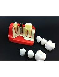 Levin Dental Implant Análisis extraíble 3-unit corona puente demostración dientes Modelo