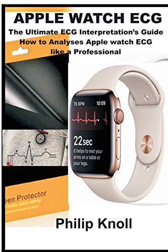 Apple Watch ECG: The Ultimate ECG Interpretations Guide; How to ...