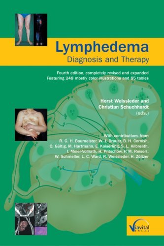 Lymphedema-Diagnosis and Therapy: Fourth edition, completely revised and expanded by Horst Weissleder (Editor), Christian Schuchhardt (Editor), Matthias Böcking (Illustrator) (1-Dec-2007) Perfect Paperback