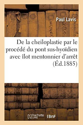De la cheiloplastie par le procédé du pont sus-hyoïdien avec îlot mentonnier d'arrêt