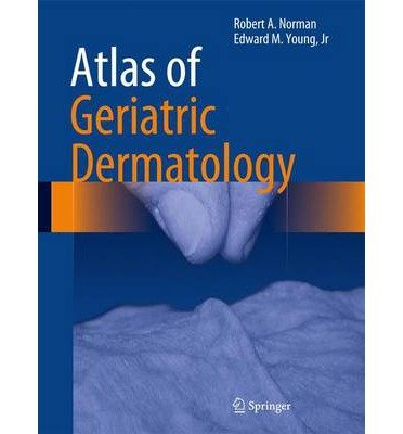 [(Atlas of Geriatric Dermatology)] [Author: Robert A. Norman] published on (September, 2013)