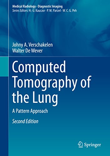 Computed Tomography of the Lung: A Pattern Approach (Medical Radiology) (English Edition)