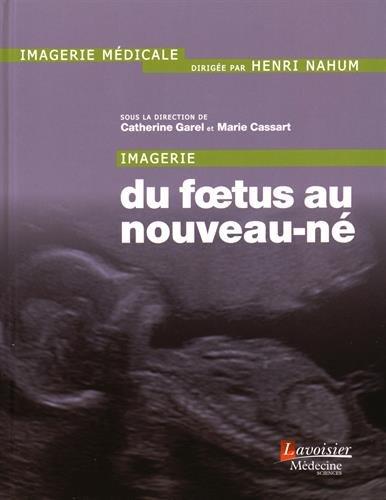 Imagerie du foetus au nouveau-né