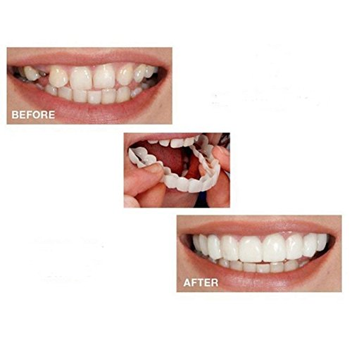 Symeas Dents Cosmetic Comfort Fit Dents Cosmétiques Prothèses Dentaires Top Dent Cosmetics Dents Kit Dents Supérieures