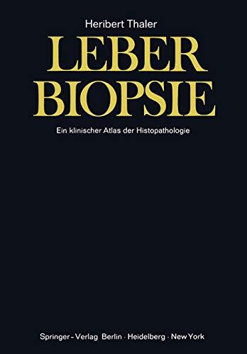 Leberbiopsie: Ein klinischer Atlas der Histopathologie