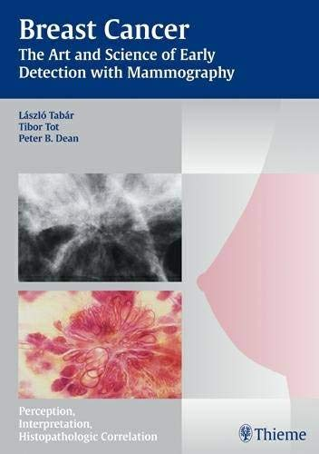 Breast Cancer: The Art and Science of Early Detection with Mammography: Pathology, Patterns and Perception (Tabar Mammo)