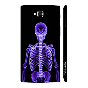 Enthopia Designer Hardshell Case X-Ray Yourself Back Cover for LG Pro Lite