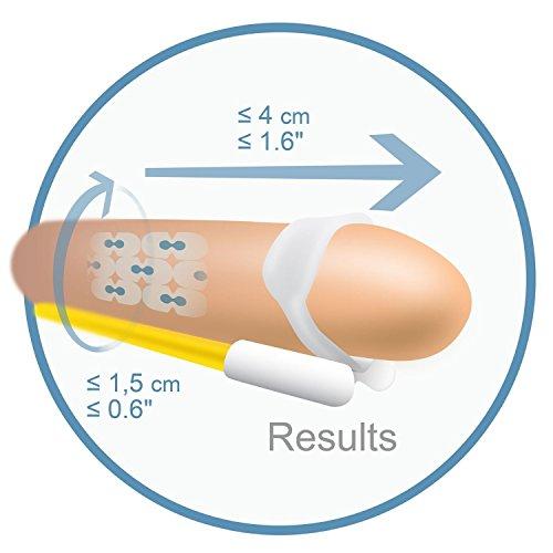 andromedical-apy-2947-x1-extenseur-de-penis-pour-correction-des-courbures