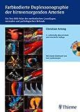 Farbkodierte Duplexsonographie der hirnversorgenden Arterien