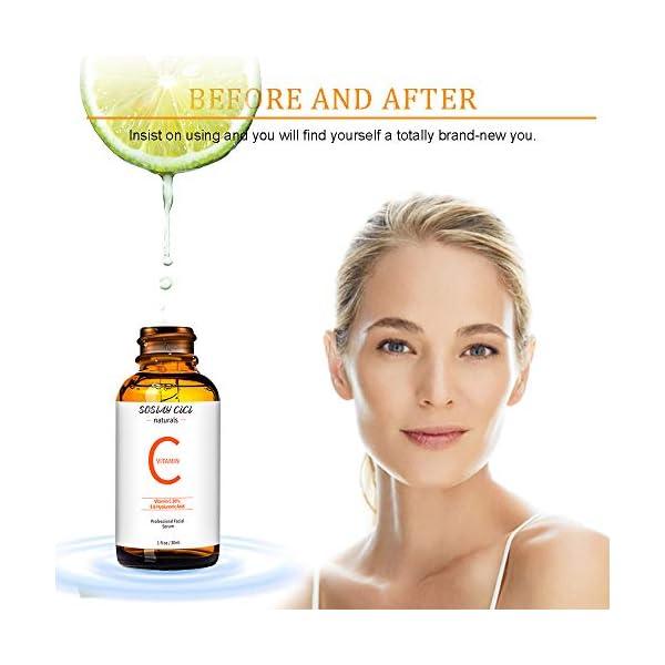 Serum Vitamina C – Serum Facial con 20% Vitamina C y Acido Hialuronico, Vitamina E – Anti Arrugas y Antiedad, Anti Manchas – Suero Hidratante Facial Mujer(30ml)