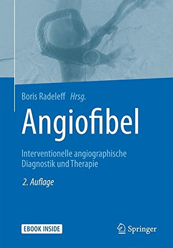 Angiofibel: Interventionelle angiographische Diagnostik und Therapie