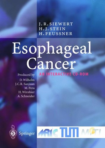 Esophageal Cancer. CD-ROM für Windows: Diagnosis and Treatment - An Interactive CD-ROM