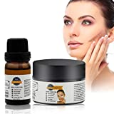 Acne Scar Removal Cream,Scar Cream,Scar Essence,Skin Repair Cream,Treatment for FaceBody Scar,Acne Spots,Scar kit