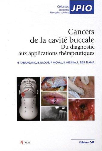 cancers-de-la-cavit-buccale-du-diagnostic-aux-applications-thrapeutiques