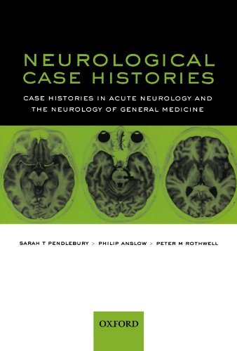 Neurological Case Histories: Case Histories in Acute Neurology and the Neurology of General Medicine: Written by Sarah Pendlebury, 2007 Edition, (1st Edition) Publisher: OUP Oxford [Paperback]
