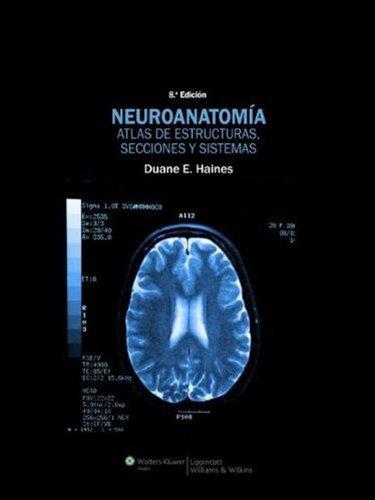 Download Neuroanatomia. Atlas de estructuras, secciones y sistemas ...