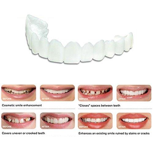 Falsche Zähne Kit Kosmetische Oberzähne Gefälschte Zähne Gezahnte Prothese Passt für Falsche Zähne Obere Gefälschte Zahnabdeckung