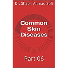Common Skin Diseases: Part 06 (English Edition)